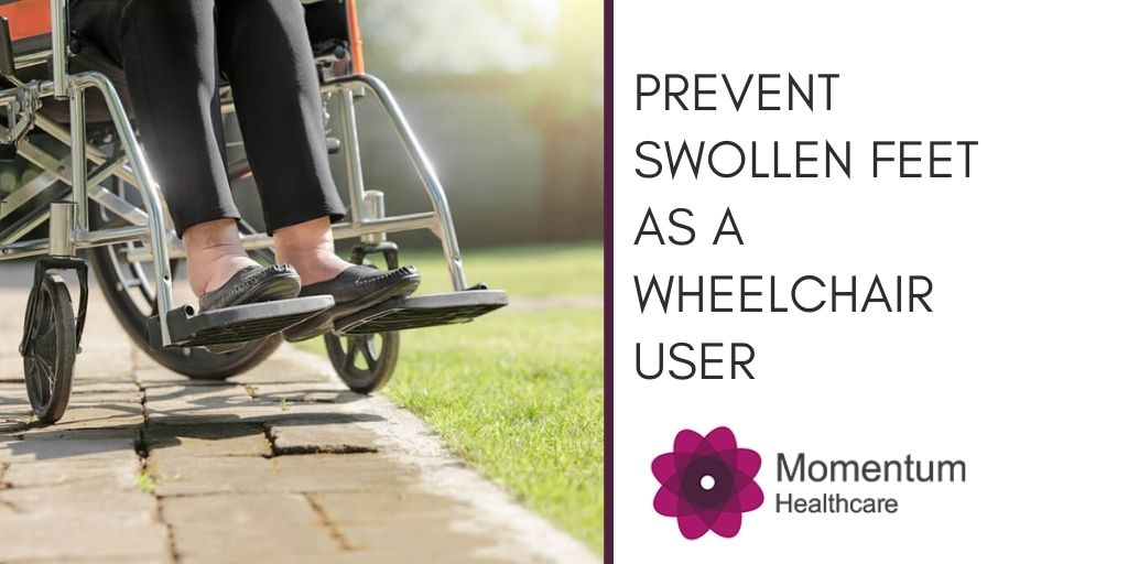 How to Prevent Swollen Feet as a Wheelchair User