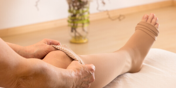 How to Prevent Swollen Feet as a Wheelchair User Momentum Healthcare
